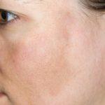グッと疲れて見えるくすみ肌5つの原因と垢抜け肌にする方法