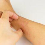 手のかゆみ、手荒れの種類と原因・改善のために試したいこと
